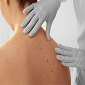 Dermatovenerolog