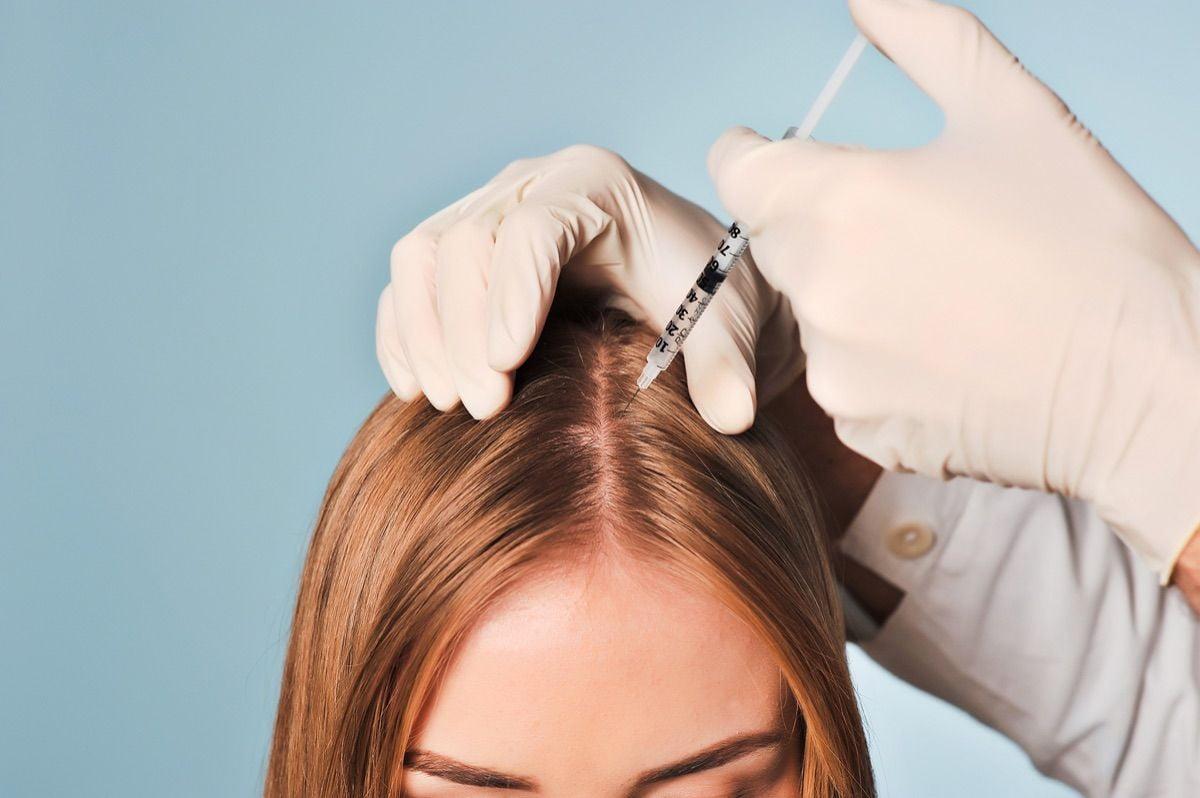 provedenie-protsedury-mezoterapii-volos
